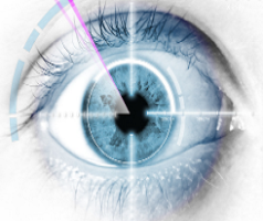 Eye-Laser-Surgery