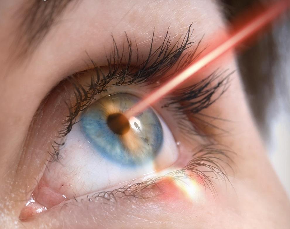 eye laser-surgery