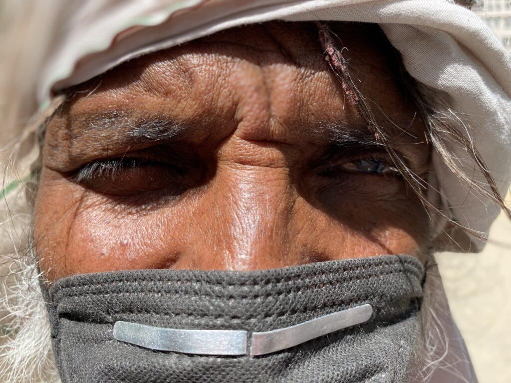 Patient Arunodaya Deseret eye hospital